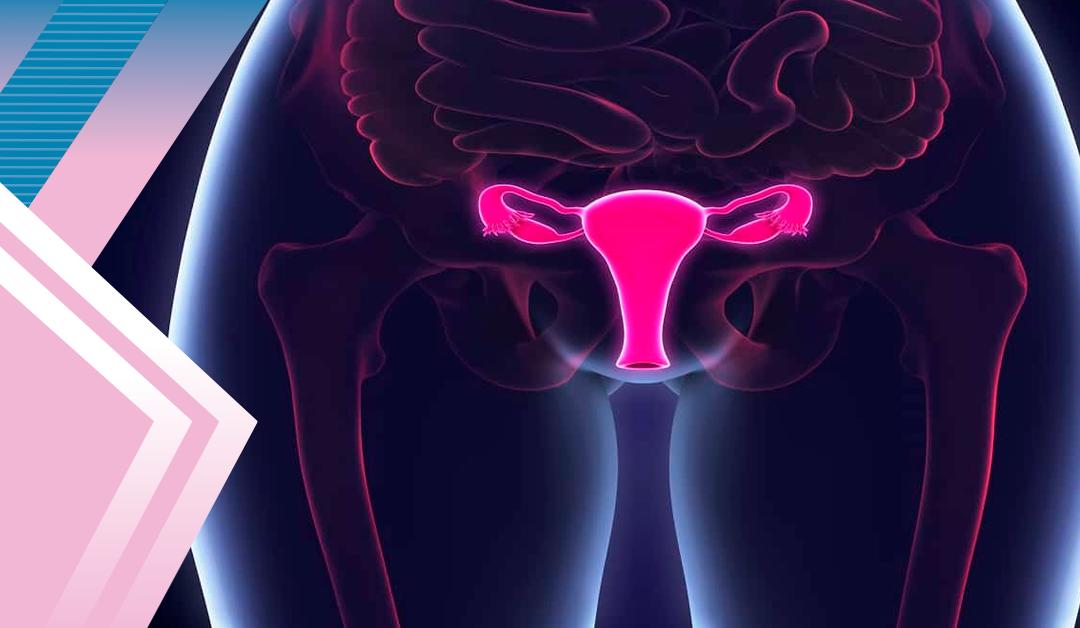 Cáncer cervicouterino: la segunda causa de muerte por cáncer en México