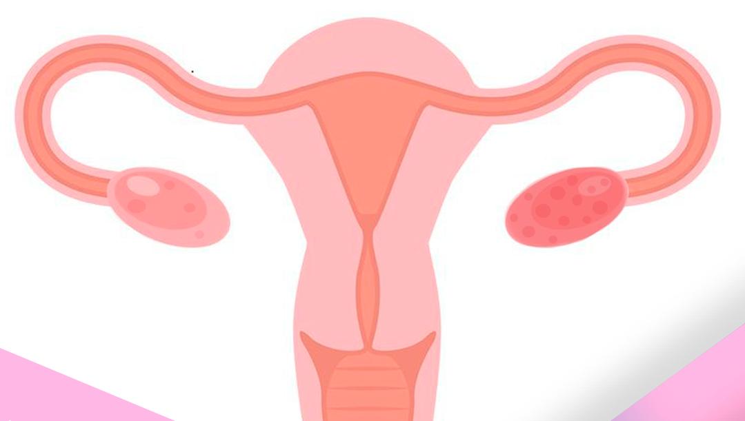 SOP, síndrome de ovario poliquístico