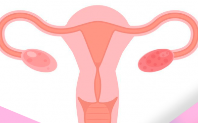 SOP: ¿Qué es el Síndrome de Ovario Poliquístico?